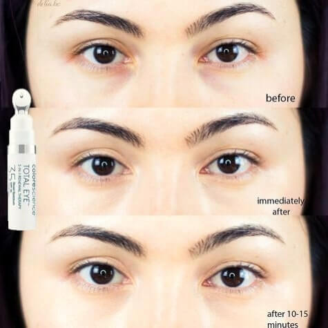 Colorescience Total Eye 3-in-1 Renewal Therapy Review